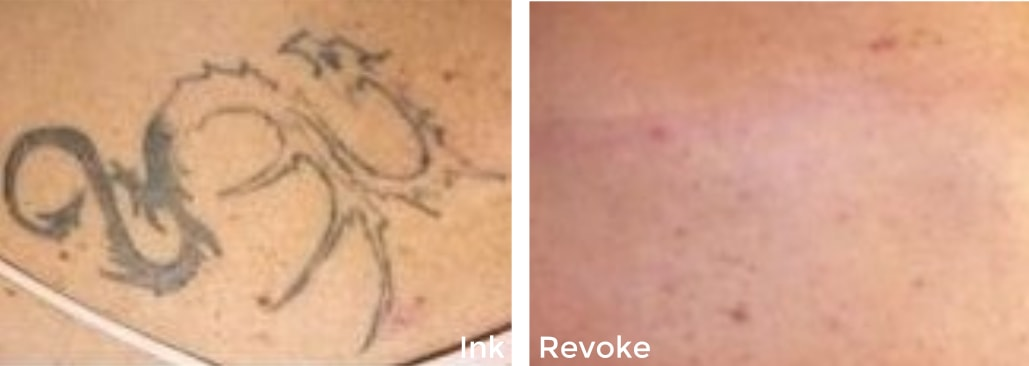 Tattoo Removal Longmont